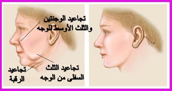 52fb52a45 مس فينوس   فترة النقاهة والتنبيهات الهامة بعد عملية شد الوجه الجراحية